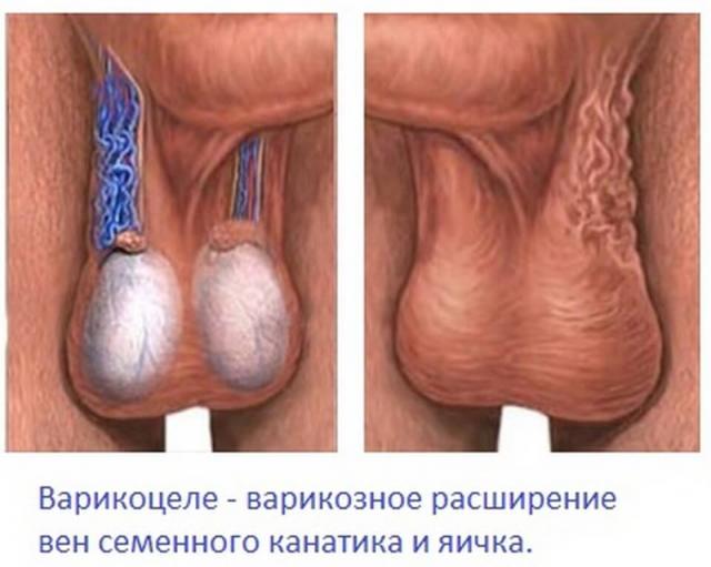 Может ли болеть левое яичко от простатита вылечить инфекционный простатит