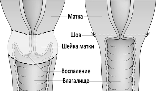 Ампутация шейки матки : техника проведения, последствия и осложнения