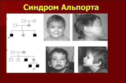 Наследственный нефрит (синдром Альпорта) у детей : причины, симптомы, диагностика, лечение