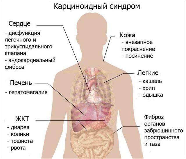 Иридокорнеальный синдром: причины, симптомы, диагностика, лечение