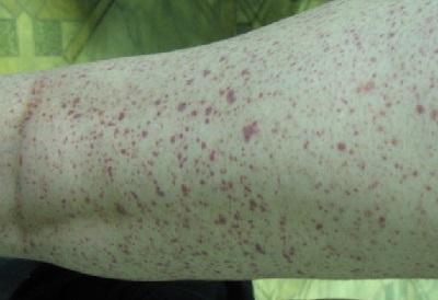 Аллергический васкулит – причины, симптомы и лечение
