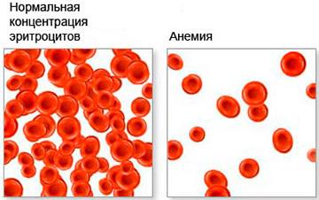 Анемия Даймонда-Блекфена : причины, симптомы, диагностика, лечение