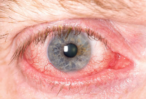 Факогенный увеит (факоанафилаксия): причины, симптомы, диагностика, лечение