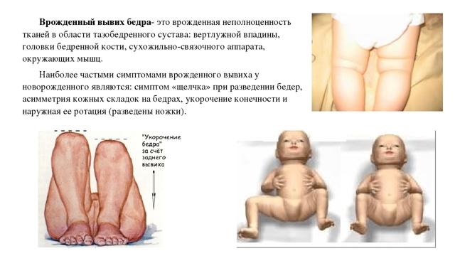 Вывих бедра: причины, симптомы, диагностика, лечение