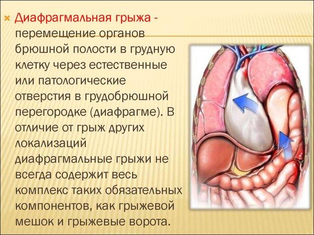 Боль в левом подреберье после еды : причины, диагностика, лечение