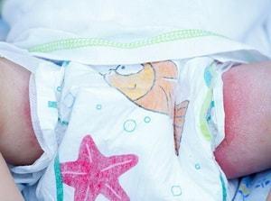 Опрелости у новорожденных : причины, симптомы, диагностика, лечение