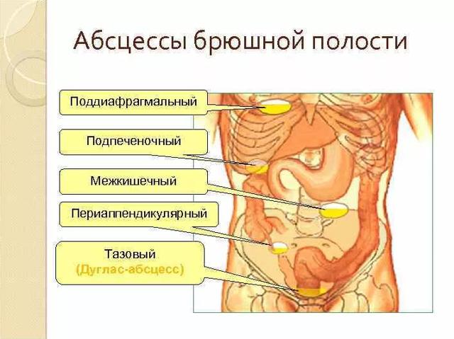 Абсцесс брюшной полости : причины, симптомы, диагностика, лечение