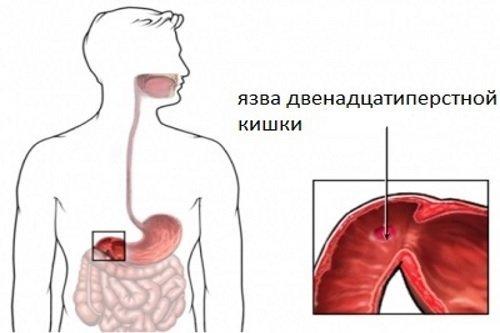 Аномалии развития двенадцатиперстной кишки: причины, симптомы, диагностика, лечение