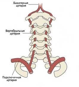 Вертебробазилярный синдром : причины, симптомы, диагностика, лечение