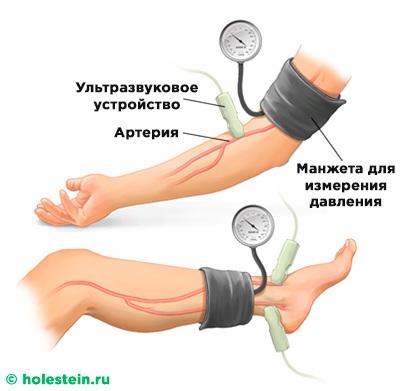 Атеросклероз - Симптомы и диагностика