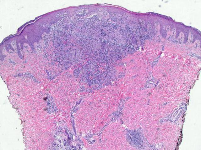 Хроническая гранулематозная болезнь: причины, симптомы, диагностика, лечение